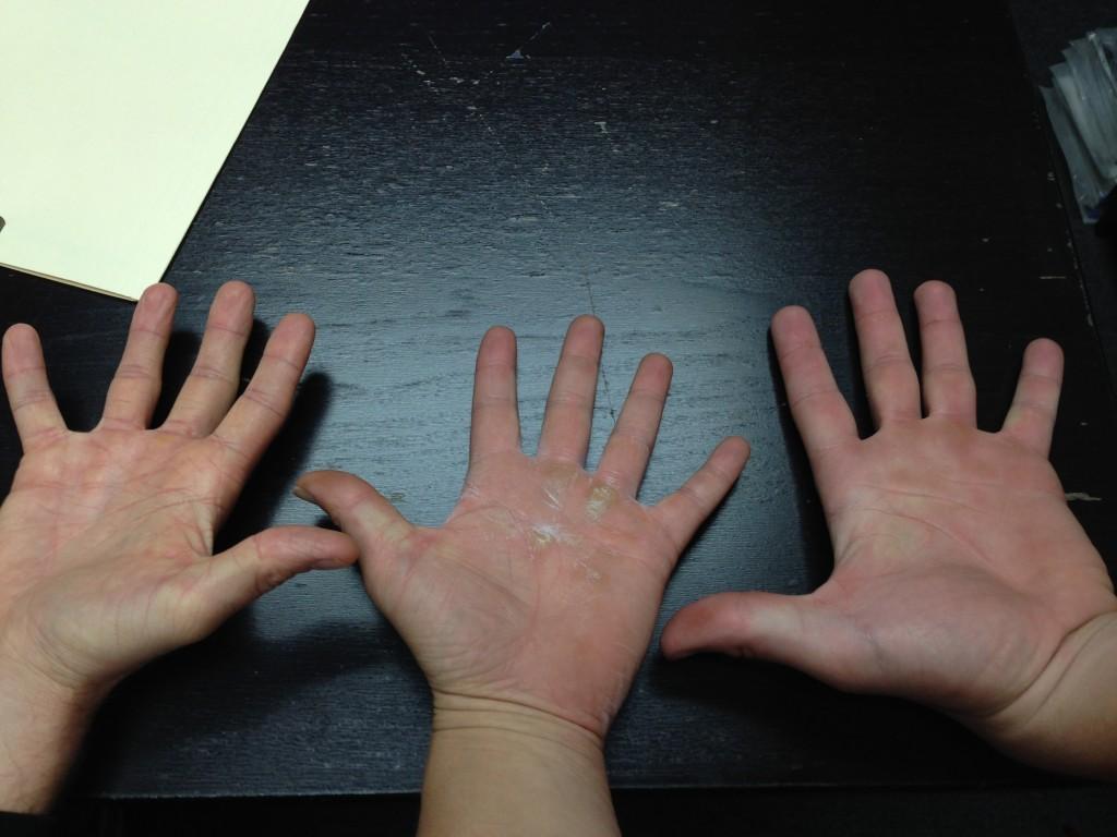 HandMaintence