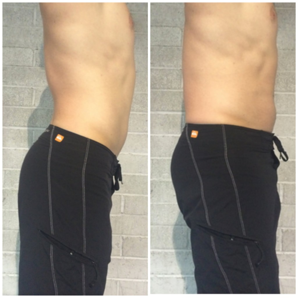 Lumbar Lordosis Stop Sticking Your Butt Out Invictus