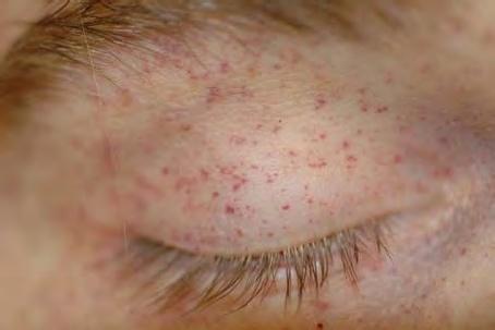 Eyelid rash - RightDiagnosis.com